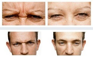 Befor & After - Wrinkle Doctor