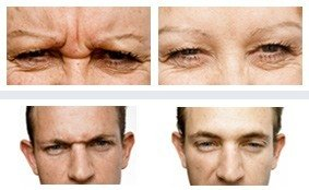 Before & After - Wrinkle Doctor