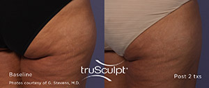 Trusculpt ID: Defining Your Body ID With Personalized Body Sculpting